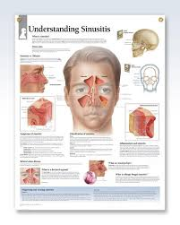 Sinus Chart Understanding Sinusitis Chart 22x28 Sinus Infection