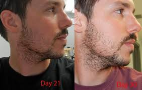 27yr Old First Beard Pics Updated Month 6 Page 4