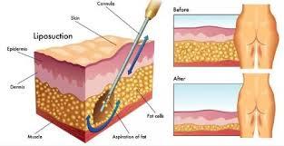 clinics for liposuction in south korea