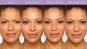 How Long Does Botox Last Denver Botox 9 Unit For All New Patients Special