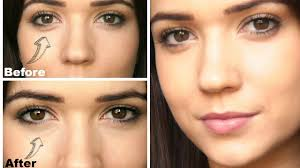 removing under eye bags without surgery best bag 2017 best makeup