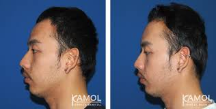 hairline lowering surgery in thailand