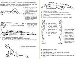 how to treat scoliosis with exercise