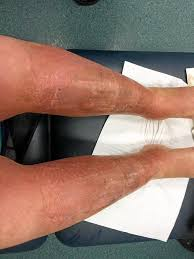 Sunburn Severity Chart Woman Suffers Third Degree Burns From The Sun Fraser Coast