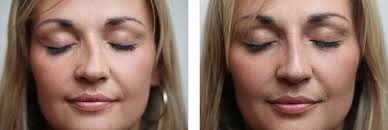harley street non surgical nose job