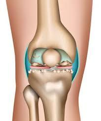 Knieschmerzen machen sich häufig bei bewegung, beispielsweise beim joggen oder treppensteigen, bemerkbar. Knieschmerzen Symptomecheck Was Bedeutet Schmerz Vorne Hinten Seitlich Beim Treppensteigen Www Gelenk Doktor De