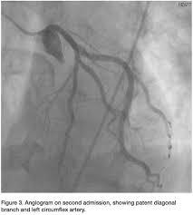 prinzmetal angina pectoris