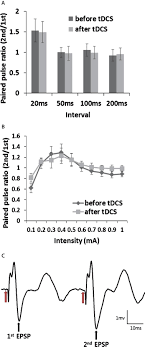 after effects of anodal transcranial direct current stimulation on paired pulse test before tdcs 250 μa for 20 minutes and at one hour