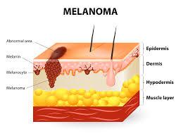 best cbd for skin cancer