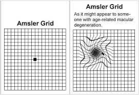 Eye Test Chart Grid 4 Amsler Grid Macular Eye Chart Www Bedowntowndaytona Com