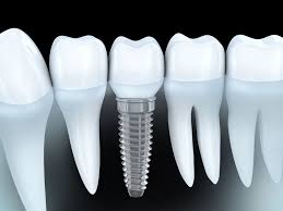 Benefits of Dental Implants » Newcastle Dental Implant Clinic ...