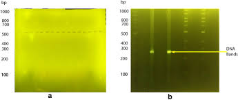 agarose in dna gel electropsis
