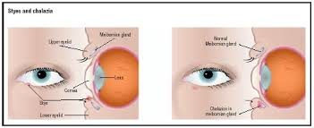 ilration of a sty left and a chalazion the sty appears on the