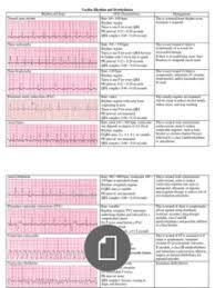 Cardiac Dysrhythmia Chart Med Surg Nur4 Cardiac Nursing