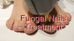 LASER FUNGAL NAIL TREATMENT - the LASERINA clinic | Manchester | Trafford