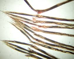Canine Parasite Egg Identification Chart Haemonchus Contortus Wikipedia