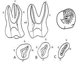 Maxillary Second Molar Accessanatomy
