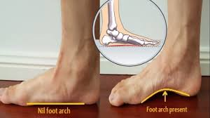 Flat Footed How To Correct Flat Feet Simple Exercises To Cure Flat Feet Youtube