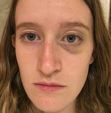 cover the entire bruise and the area imately next to it with the yellow color corrector so that you cover the edges of the bruise and some of the
