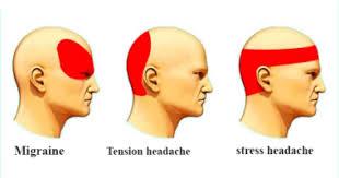 Headache Chart Arşivleri Types Of Headaches Types Of