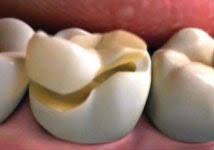 dental onlay porcelain onlays cottonwood creek dental dr dolby eagle idaho
