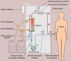 best biology assignment help images biology types of dialysis hemodialysis