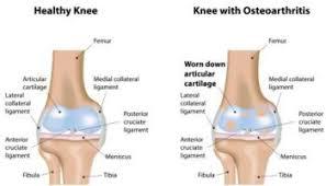 knee joint pain treatment ayurvedic