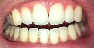 natriumbicarbonaat tanden schadelijk