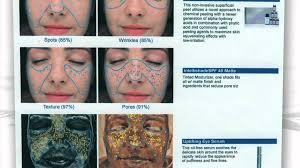 Skin Scope Color Chart Skin Analyzer Machine Skin Observed System Skin Analysis