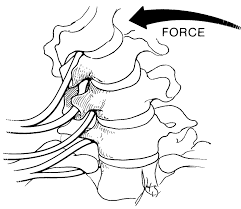 compression force injury. bending stress on spine showing anterior compression and posterior tension spinal discs force injury .