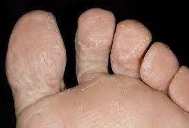 Léčit Plíseň Na Nohou Doma Tinedol
