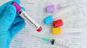 Image result for thalassemia diagnosis