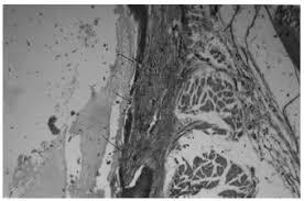The Effect of <b>Propolis</b> in Healing Injured Nasal Mucosa: An ...