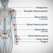 Image result for upper extremity levels of amputation
