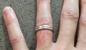 Rash Under Wedding Ring Wedding Ring Rash A Real Life Seven Year Wedding Ring Rash Spreading