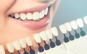 Porcelain veneers: advantages and disadvantages - Dental Health Centers in Miami