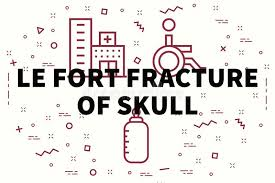 Le Fort Fracture Conceptual Business Illustration With The Words Le Fort Fracture