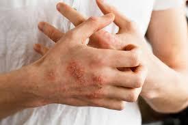 Latex Allergy - Symptoms, Foods, Latex Allergy Rash & Treatment