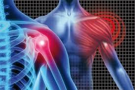 آرتروز مفصل شانه چیست؟ - دکتر فوق تخصص درد و طب فیزیکی، بهترین دکتر درمان  کمر درد