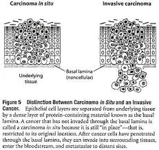 essay on cancer screening for medical students diseases biology a cancer that has not yet invaded through the basal lamina is called a carcinoma in situ meaning that it is still in its preinvasive stage