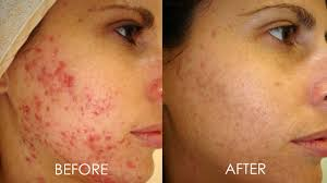 Blue Light Therapy Acne Results Led Light Therapy In Dubai Abu Dhabi Led Therapy Blue