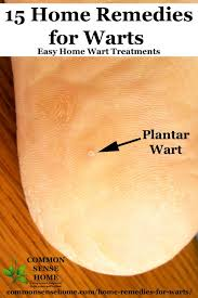 15 home remes for warts easy home