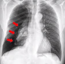 Pneumothorax X Ray Ai System More Accurately Identifies Collapsed Lungs Using