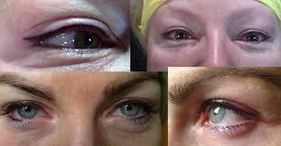Tetování Očních Linek Diskuze