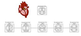 Bicuspid Aortic Valve Wikipedia