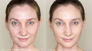 before and after wearing make up for ever ultra hd foundation stick in y245