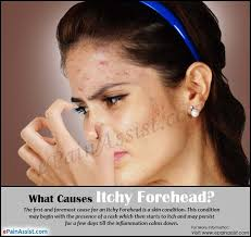 Causes of Itchy Forehead & Way to Get Rid of it