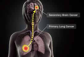 Visual Guide To Brain Cancer