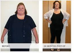 Gastric Sleeve Surgery Success Stories | Gwinnett Medical Center