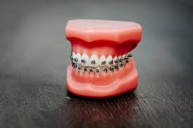 How Braces Work To Straighten Your Teeth Gorman Bunch